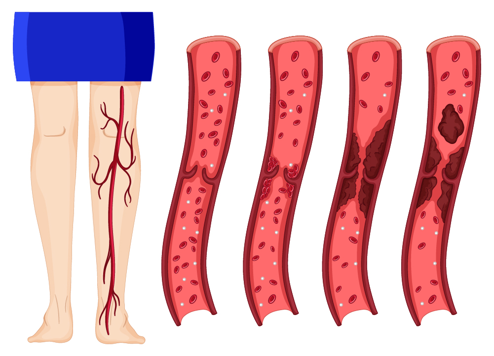 Simptomele unei posibile tromboze
